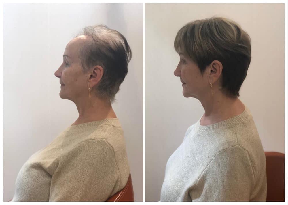 תוספות שיער - הבדלים משמעותיים